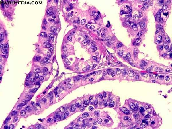 Renal Cell Carcinoma Collecting Duct Type Tumors Are Lined By A
