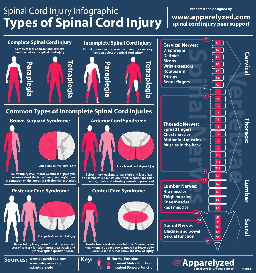 the seriousness of spinal injuries and how it affects the body Spinal cord injury lawyer hawaii - hawaii spinal cord injury attorney william lawson- spinal cord injury, trauma, sci, paraplegia, quadriplegia, paralysis, spinal cord injuries- 30 years experience - honolulu, maui and hawaii.