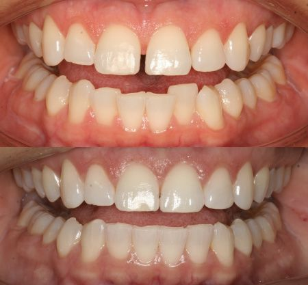 Invisalign Before and After Dr. Ginger Price- Elite Invisalign Provider Ph (602) 468-1135