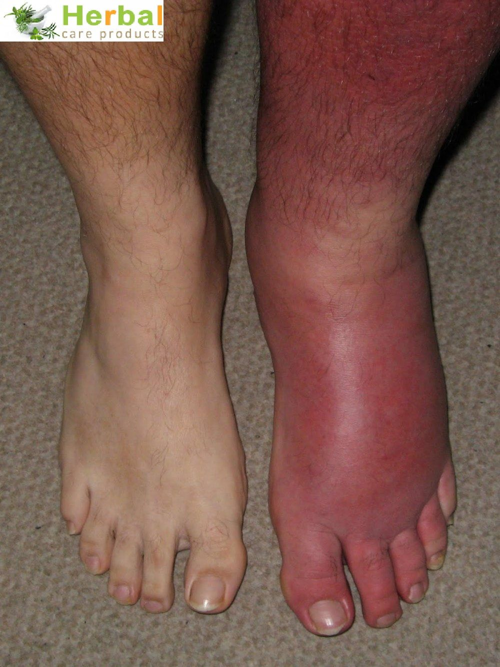 Cellulitis Signs, Symptoms, and Diagnosis