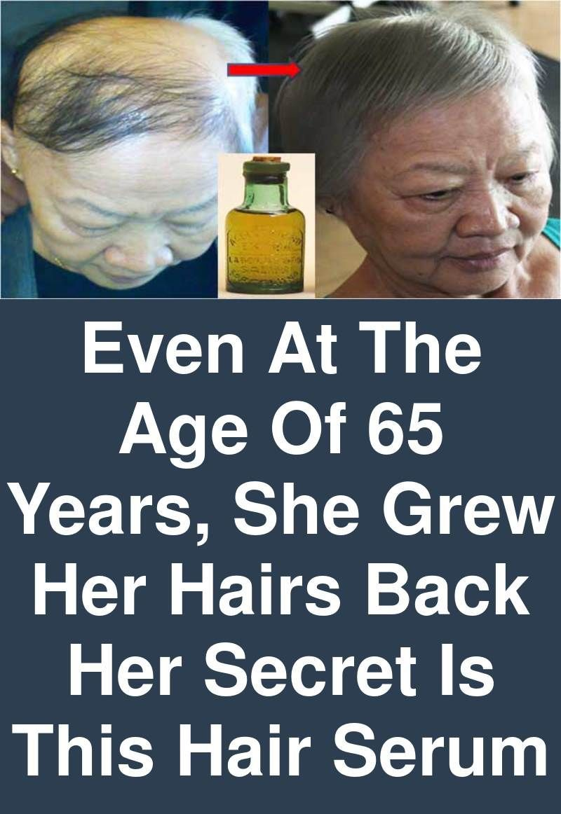 Even At The Age Of 65 Years She Grew Her Hairs Back Her Secret