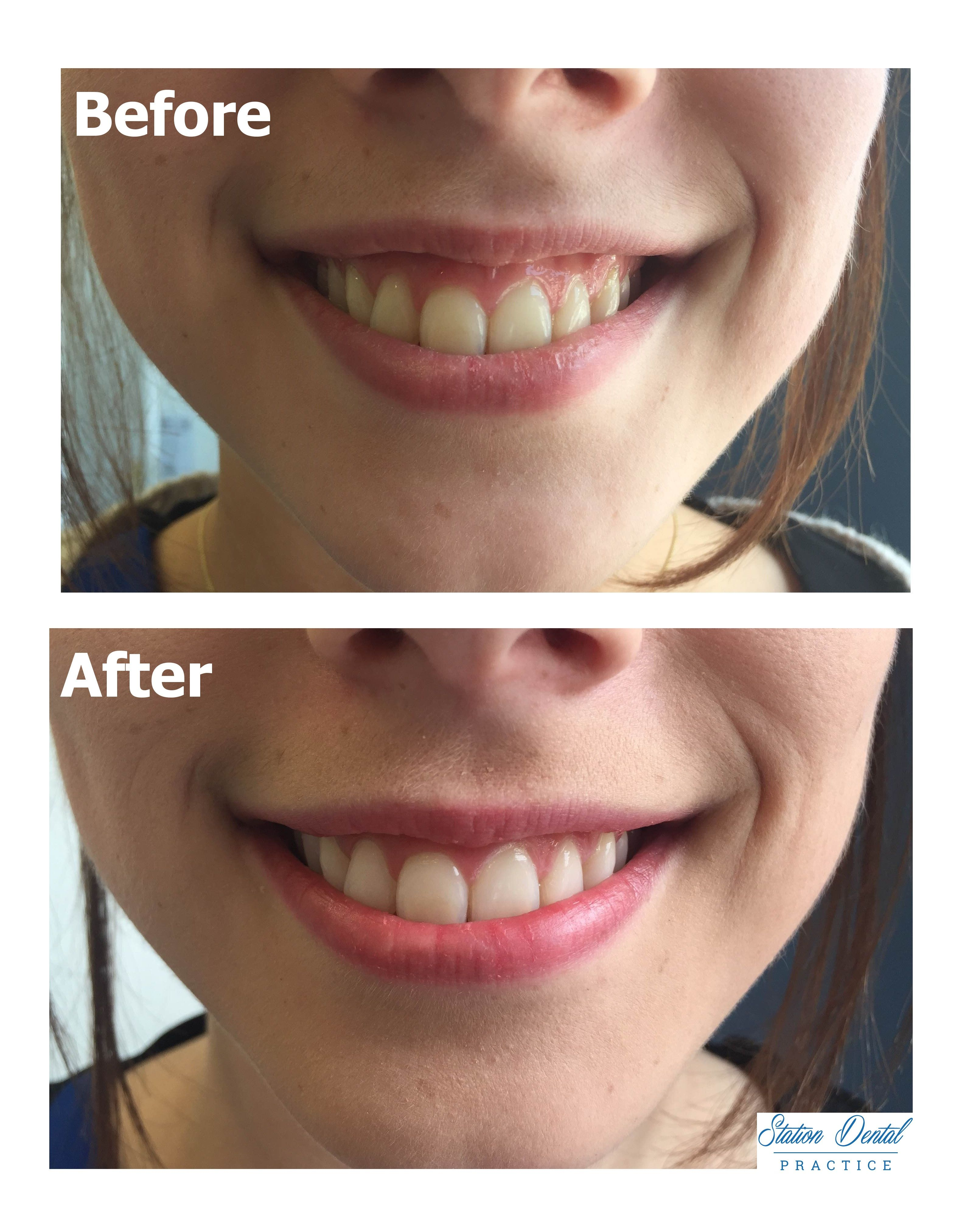 before and after at home whitening treatment our client was