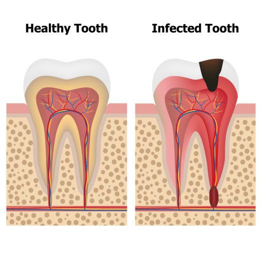 Pin By Hawthorne Village Dental Care On Our Office