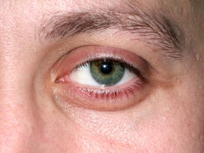 what eye problems are typical with crohn s disease crohns
