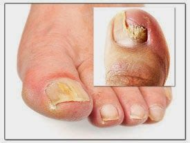 How to Cure Toenail Fungus Fast and Permanently | Remedios de salud ...