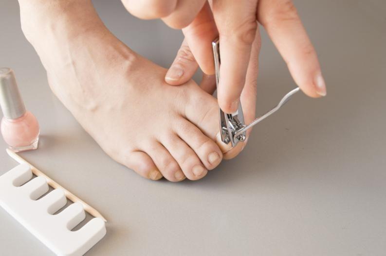 como ablandar las uñas de los pies para cortarlas mejor