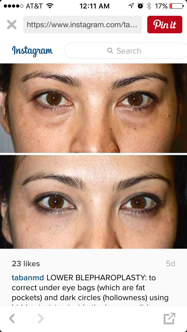 Lower Blepharoplasty Before And After Under Eye Bags Eye Bags