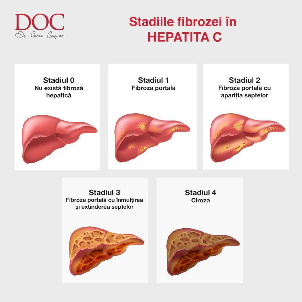Stadiile Fibrozei In Hepatita C Infographic Healthy