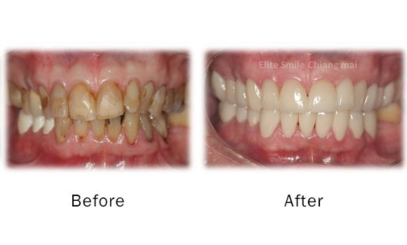 Deep Teeth Cleaning Before And After Classycloud Co