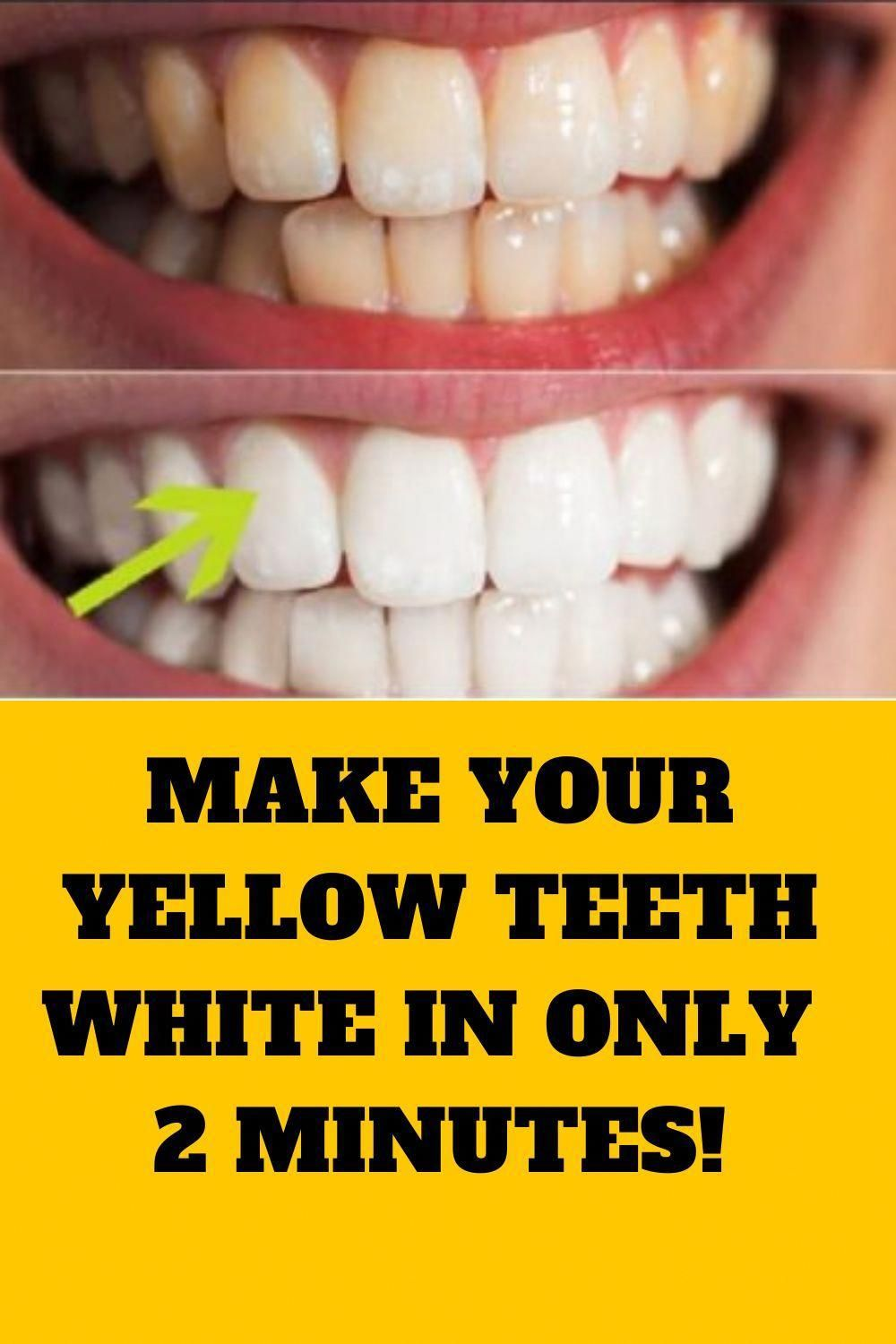 Make your yellow teeth white in only 2 minutes in 2020