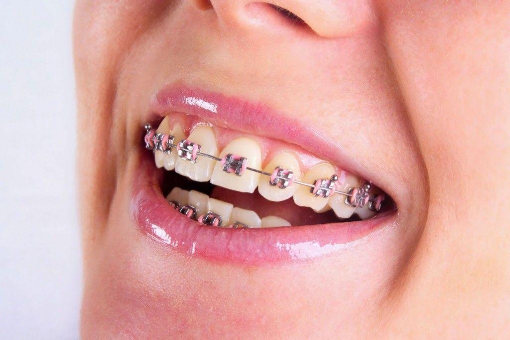 Niềng răng móm như thế nào | Nha khoa | Teeth braces