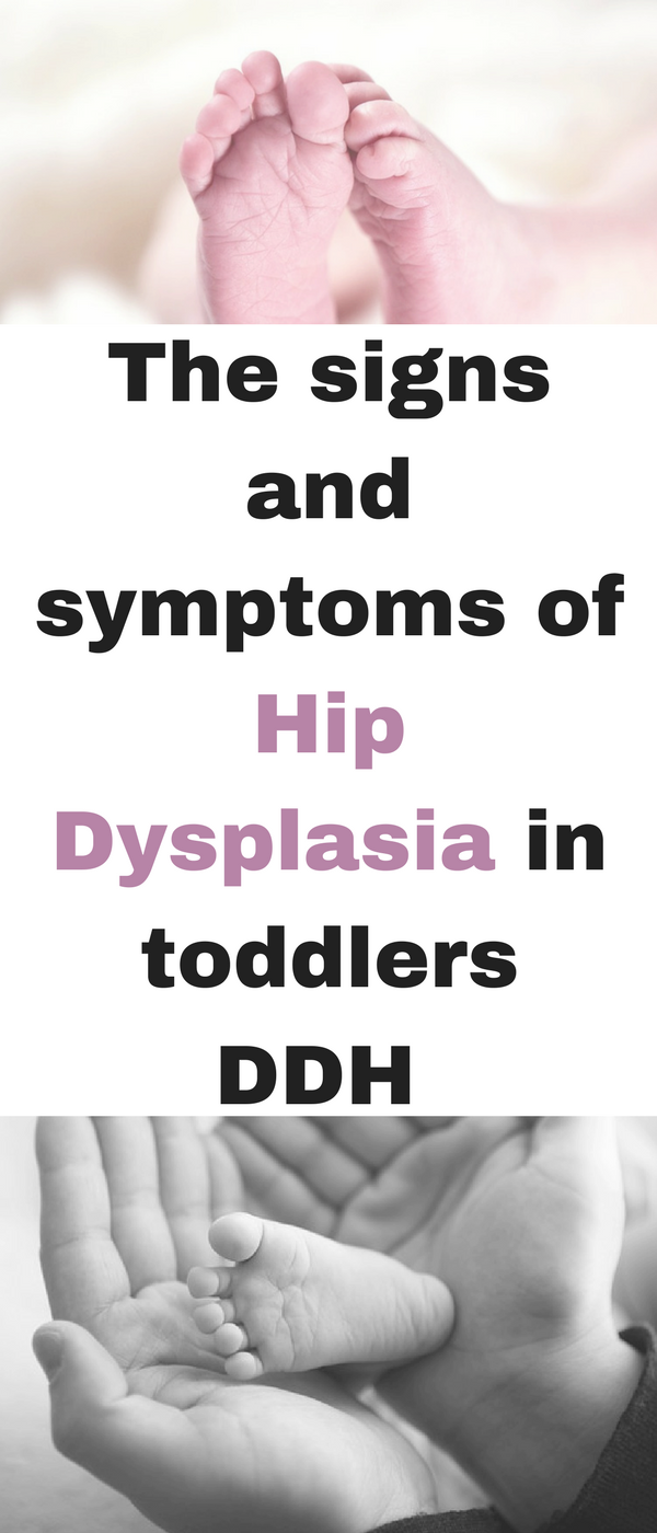 Hip dysplasia: how to act parents of infants