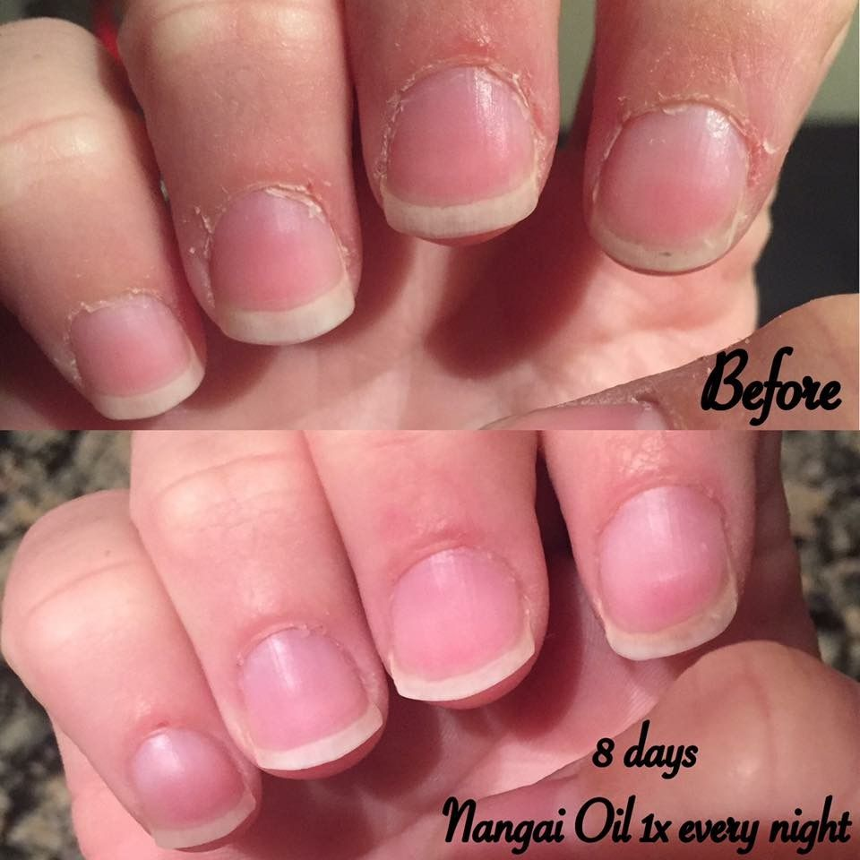 Nails and cuticle cure with Nangai oil Want to join the fun? Only ...