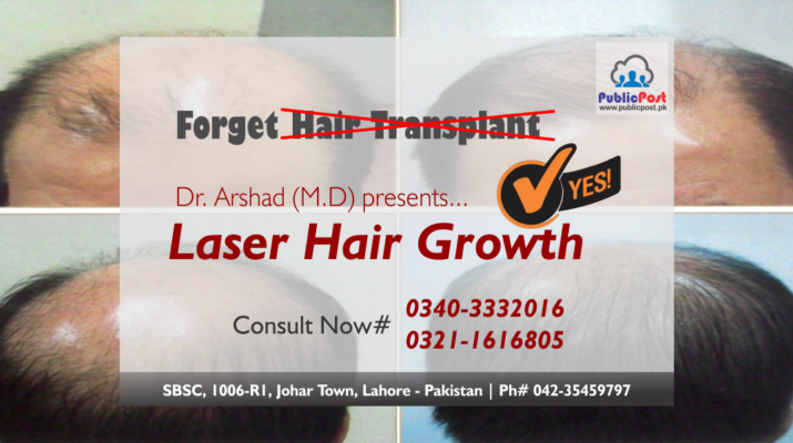 Forget Hair Transplant Laser Hair Growth Is There Hairgrowth Hairtransplant Transplant Lasertreatment C Hair Laser Growth Hair Growth Hair Transplant
