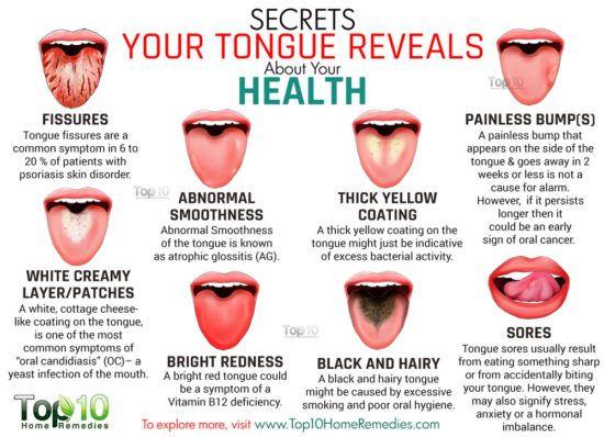 Tongue Health Diagnosis Lots Of Pinnable Charts The Whoot
