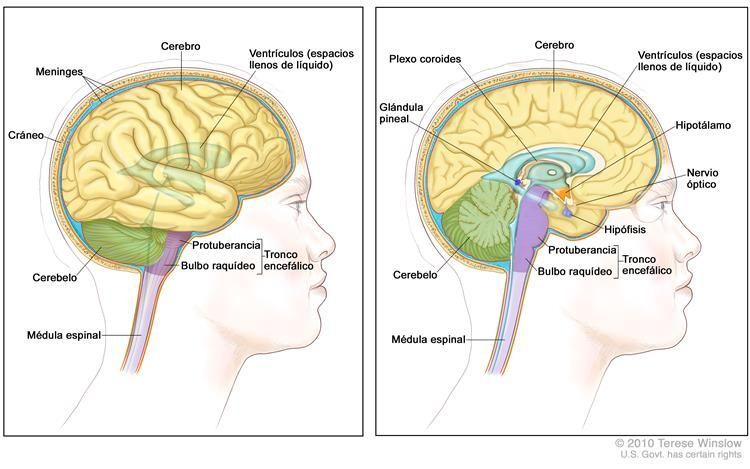 Cerebro ventrículo izquierdo y derecho