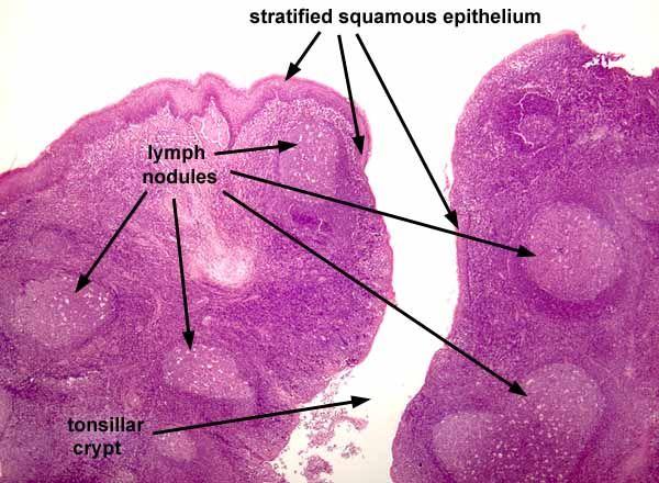 Histology Tonsils