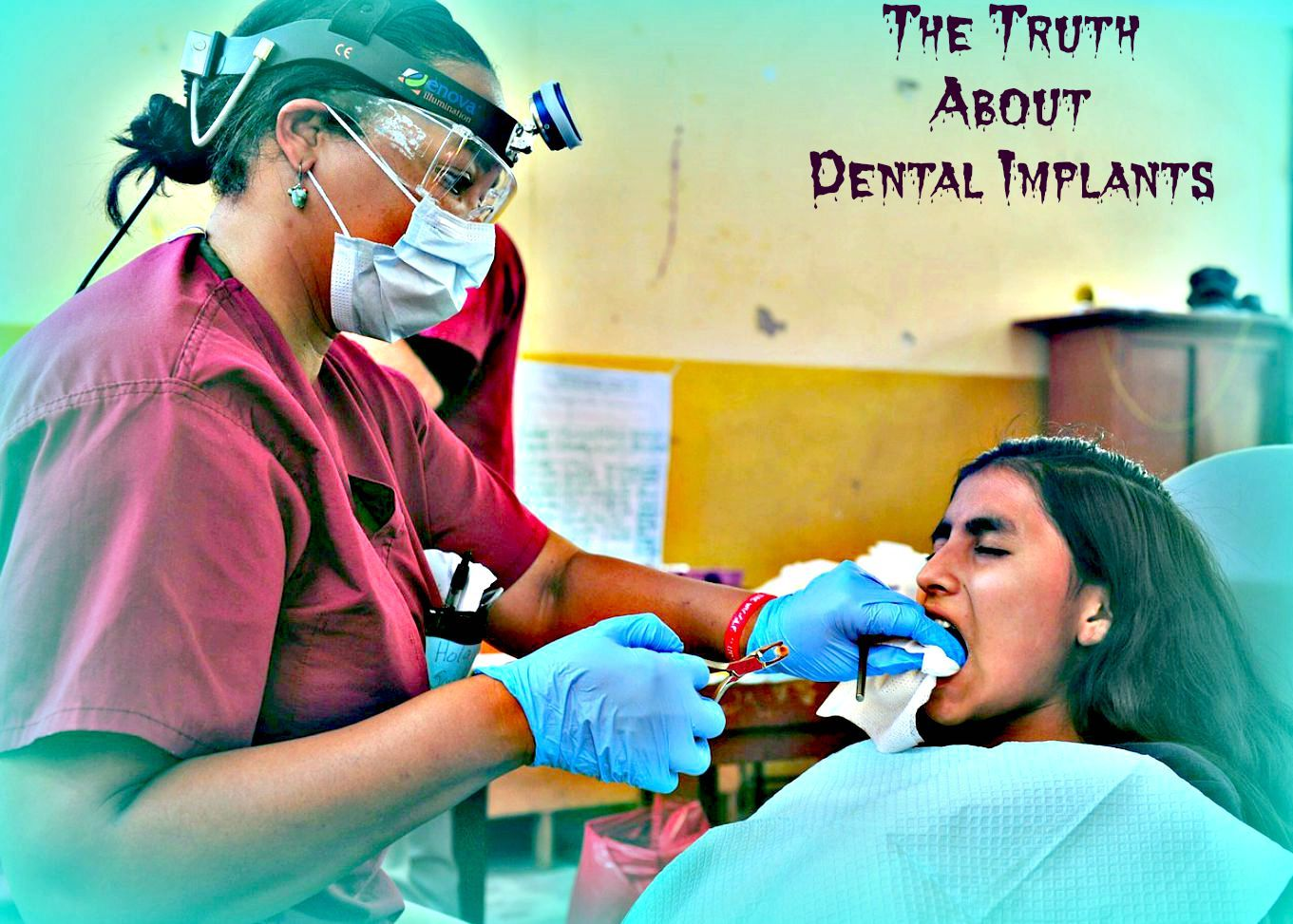 What Dentists Don't Tell You About Dental Implants Teeth