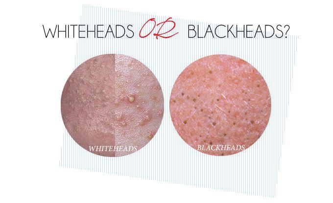 Treating Blackheads - Whiteheads: Advanced Dermatology