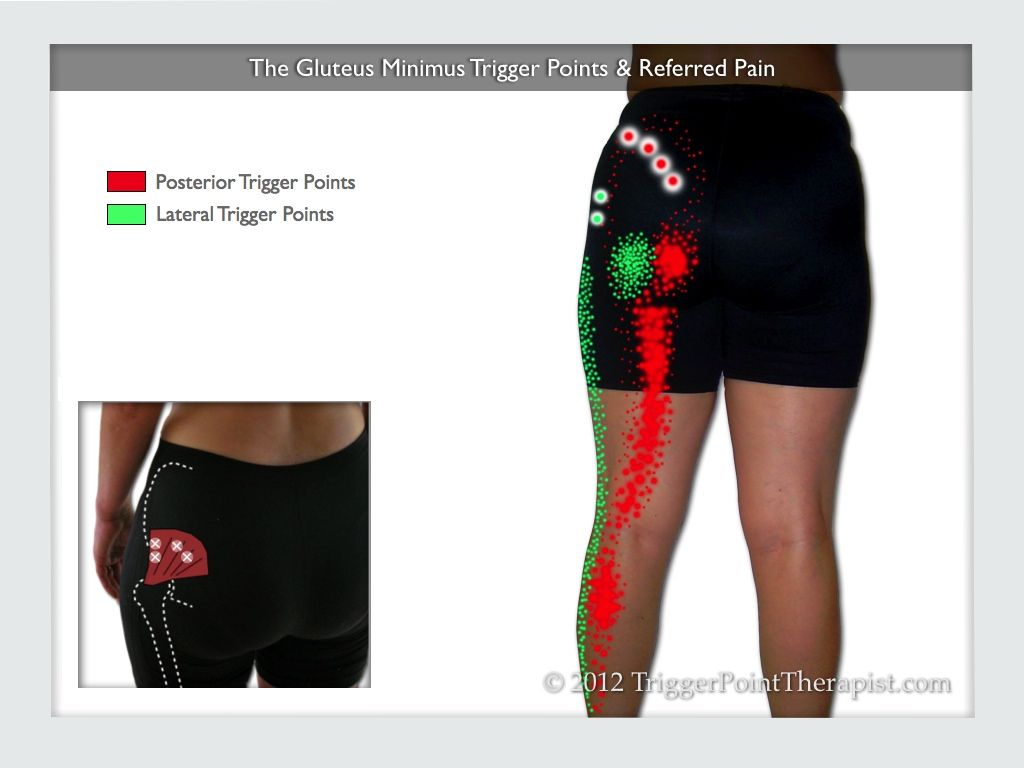 gluteus muscles diagram pain 1996 nissan maxima engine of the minimus trigger points and referred