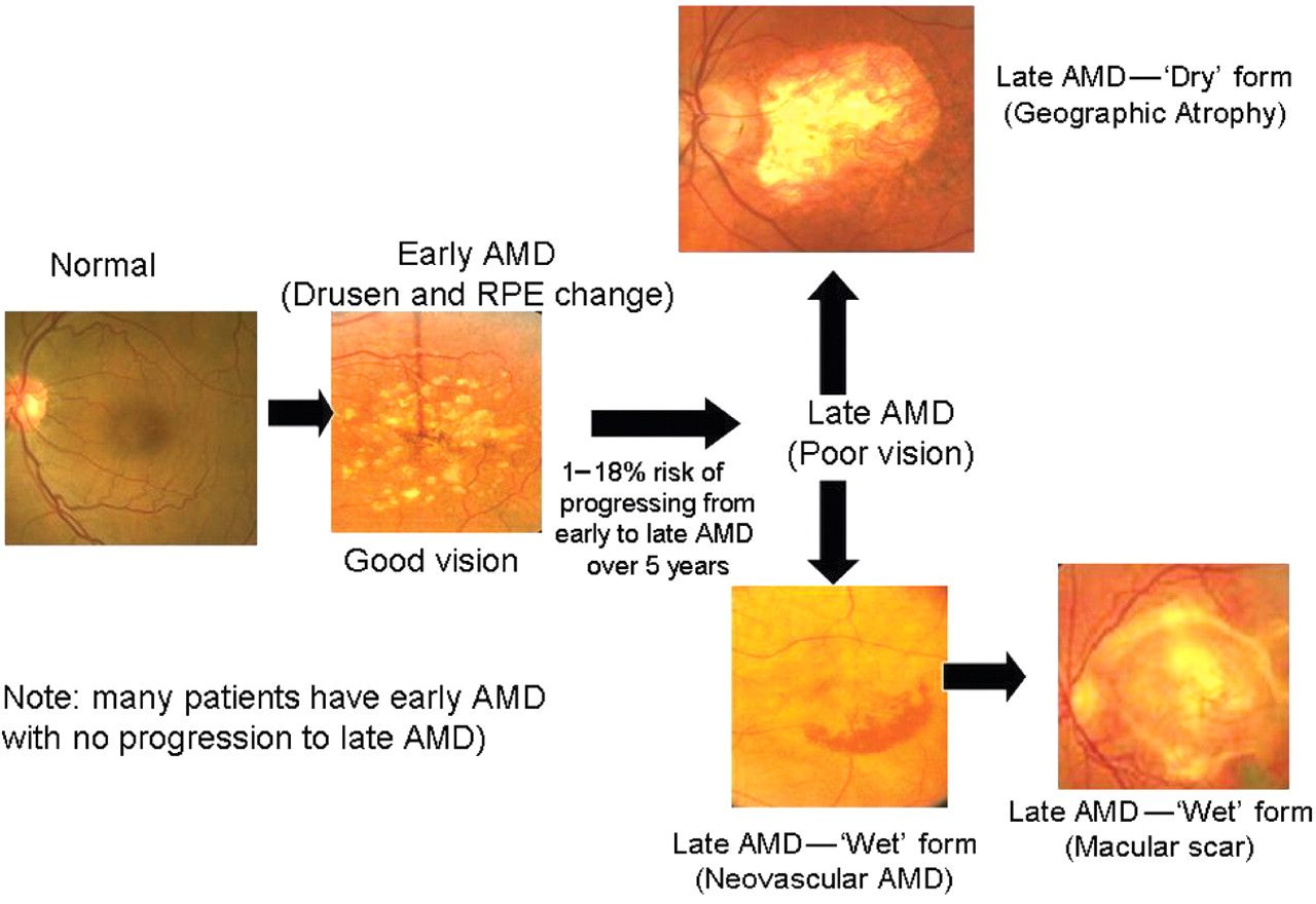 Classification Of Age Related Macular Degeneration Amd Macular Degeneration Eye Health Eyes Problems