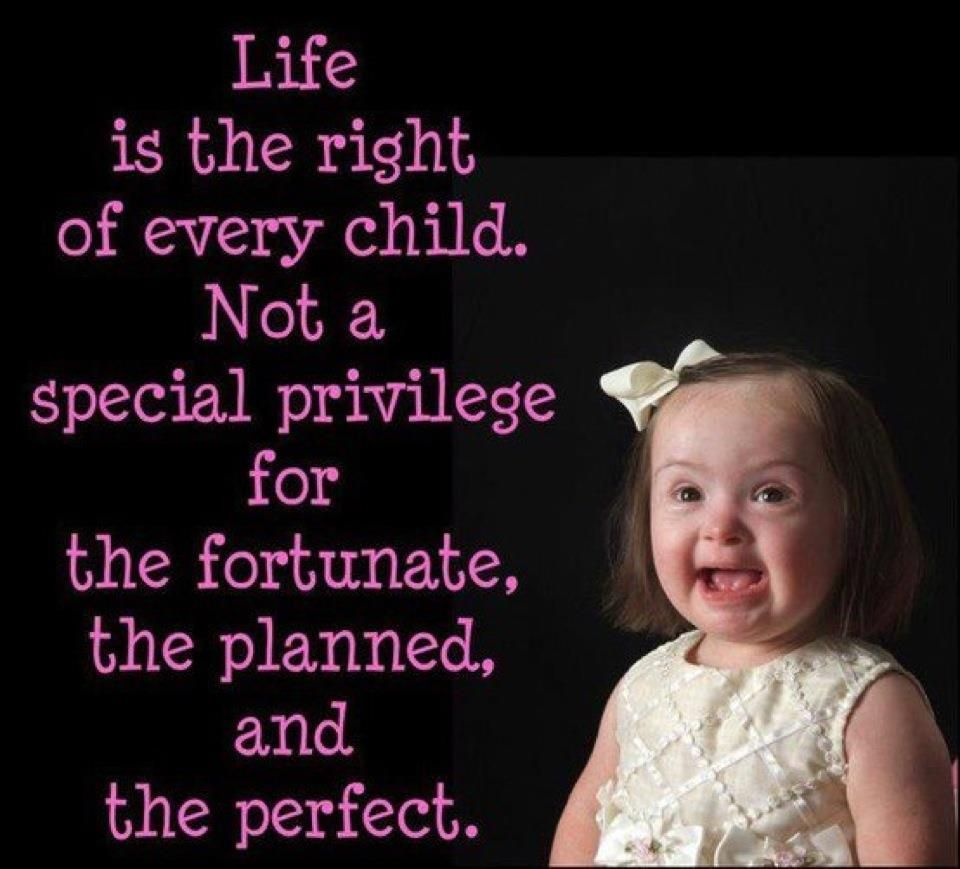 Pro Life Quotes Cute Down Syndrome Quotesquotesgram  Ds Journey  Pinterest