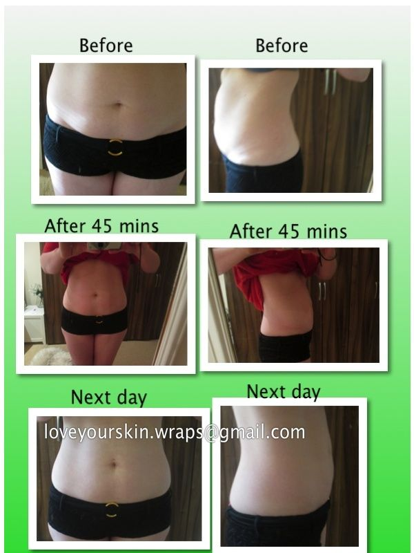 my personal ItWorks! wrapping results after c-section