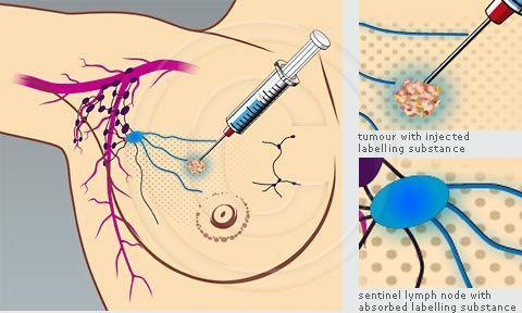 Menopause and dry vagina