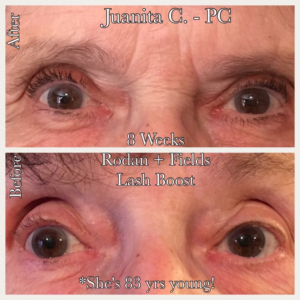 e9edc575602 Lash Boost gave this beautiful 83 year old grandma flirtatious lashes Ready  to boost your own?