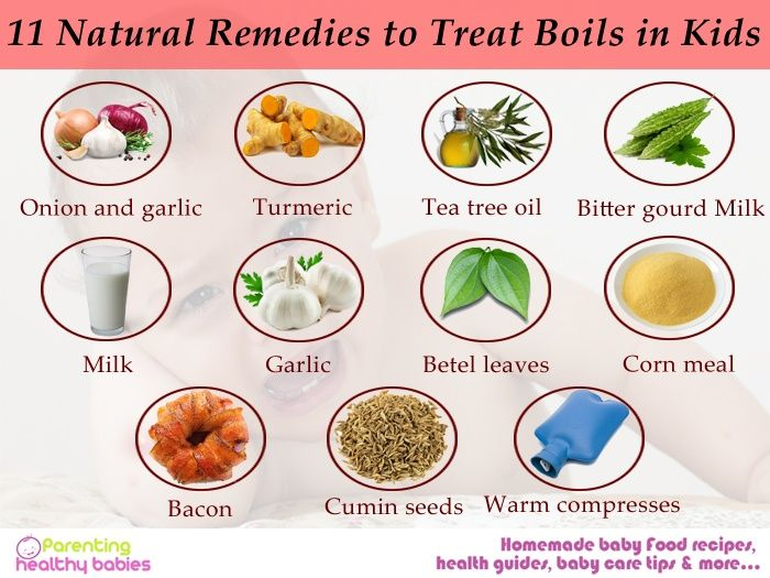 11 Natural Remedies to Treat Boils in Kids | DIY- All