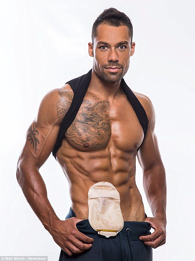 Blake Beckford Suffers From Ulcerative Colitis The