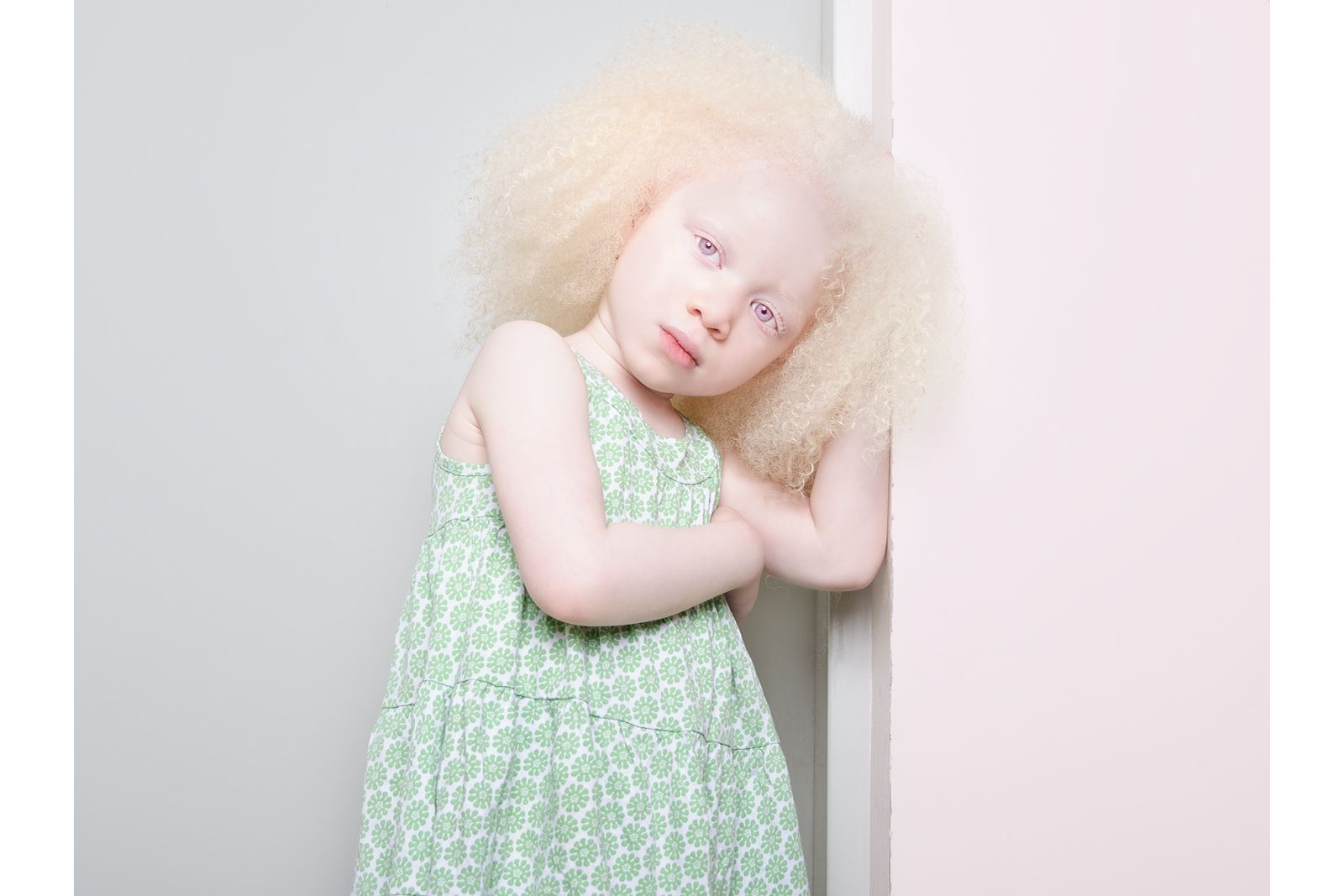 Here S What Albinism Really Looks Like Beaute Albinos People