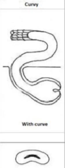 2: Formato e implantação do bulbo do cabelo crespo