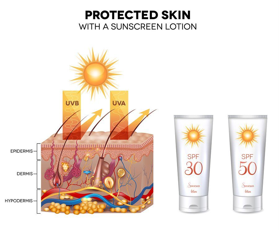 Protected skin with a sunscreen lotion UVB and UVA rays can not penetrate into the skin. Sunscreen lotion bottle with SPF 50 very high protection.