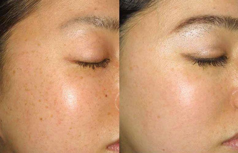 Before And After Ipl Photofacial Ipl Photofacial Ipl Laser Ipl