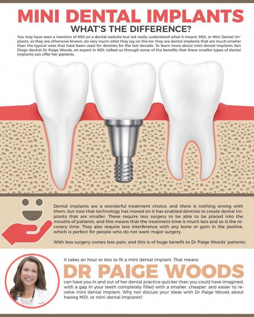 Black And White Tooth Extraction Cartoon Teethwhiteningatl Oralcareteatree Mini Dental Implants Dental Implants Holistic Dentist
