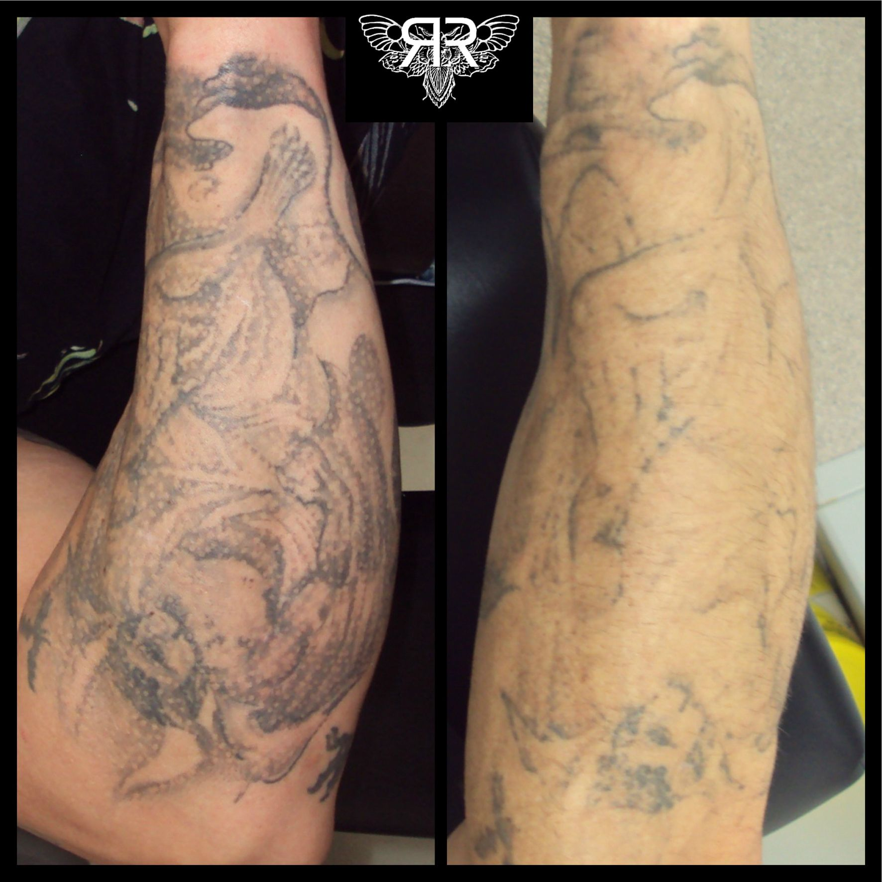 X1 Picosure Session For A Cover Up Tattoo Removal Cost Laser Tattoo Removal Tattoo Removal