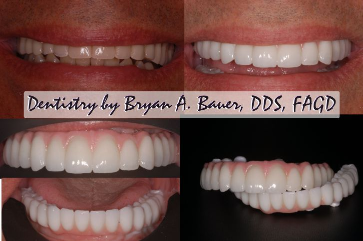 Implant Supported Dentures Or Bridge All On 4 What Are Your Choices Dental Implants Dental Implants Cost Dental