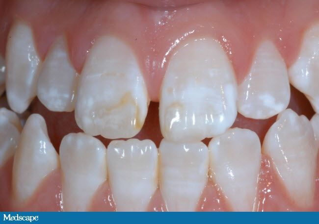 b0c6bdbaba24dd3bd9308a1826dbcd49 - How To Get Rid Of White Spot Lesions On Teeth