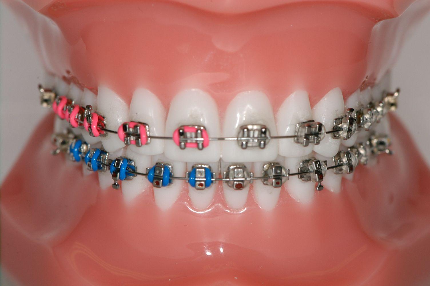 Shocking Pink - Blue   Braces Colors   Pinterest   Pink blue and ...