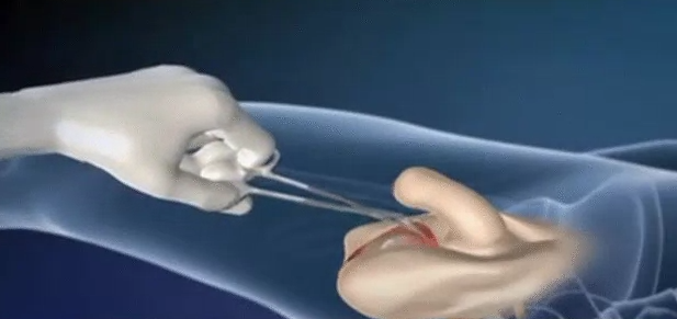 Animation Of Male To Female Surgery