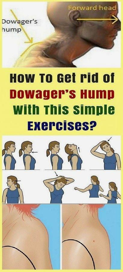 How To Get rid of Dowager's Hump With This Simple Exercises? #exercises #fitness