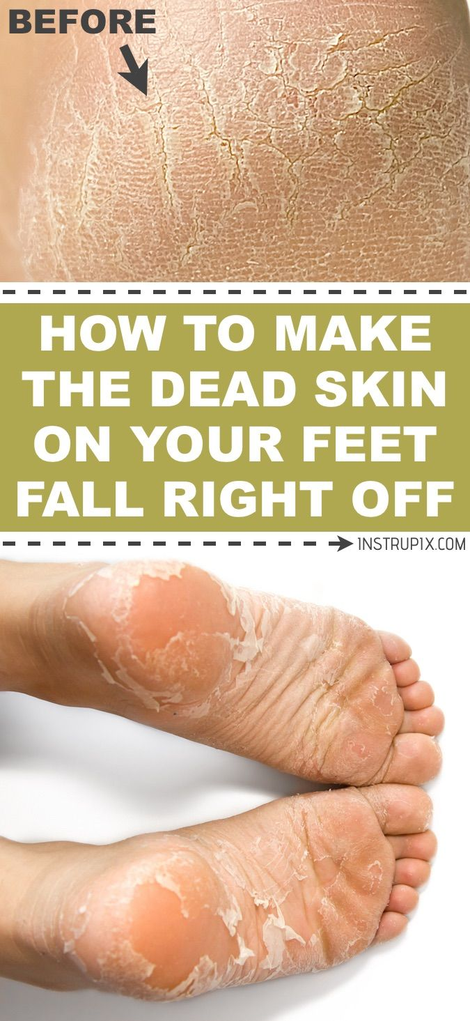 How To Make The Dead Skin On Your Feet Fall Right Off | This foot soak for dead skin means serious business! It's the ultimate soft feet remedy. It's a dead skin and callus remover that actually works. Perfect for dry, cracked heels! Instrupix.com