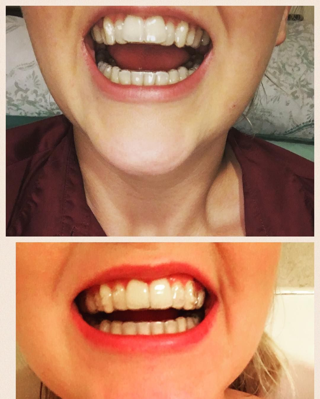 Pin By ShearBeautyBySam On Invisalign