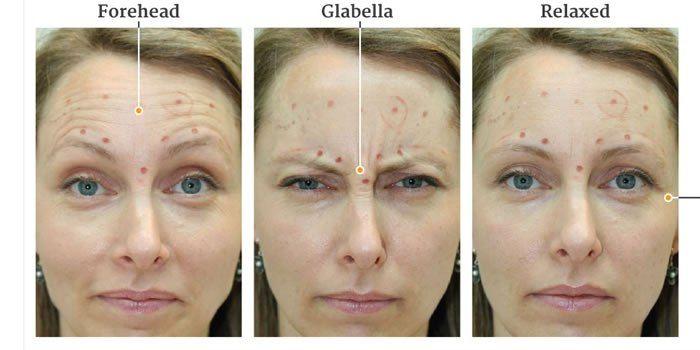 Botox Para Uso Estetico Tudo O Que Voce Precisa Saber Botox
