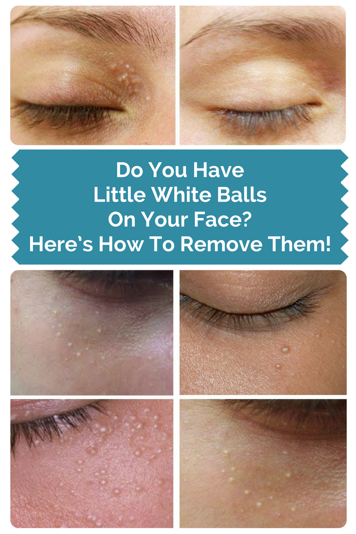 b0de7dafbb692345e3ce494c01311b2a - How To Get Rid Of Hard White Bumps On Face