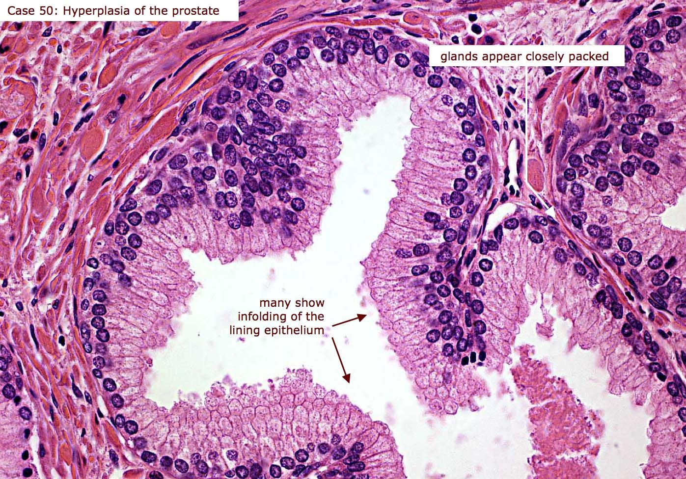 glandular epithelium cells | Cell, Case