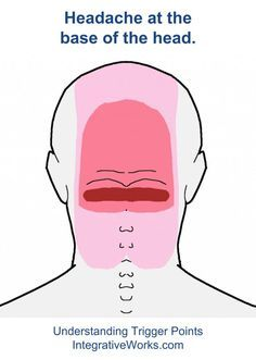 Understanding Trigger Points Headache At The Back Of