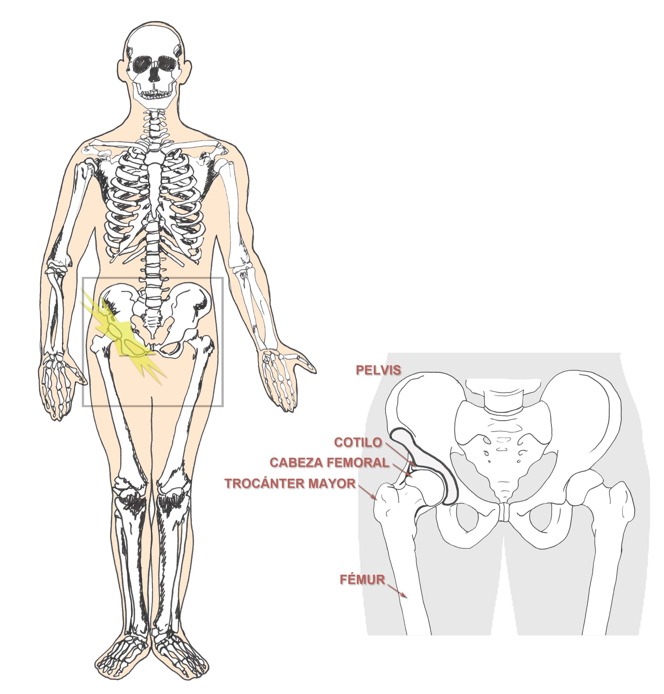 Trocanteritis Trocanteritis Dolor De Ingle Dolor Muscular