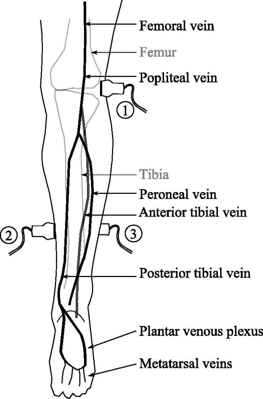 dorsal vein in foot - Google Search | vascular | Pinterest